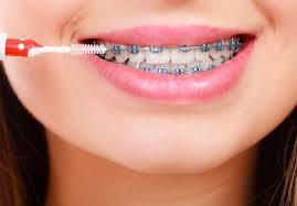 diş teli nasıl temizlenir
